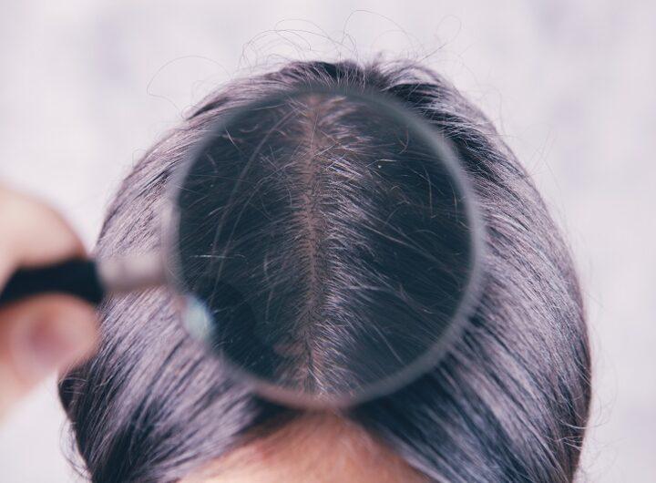 łysienie przeszczep włosów